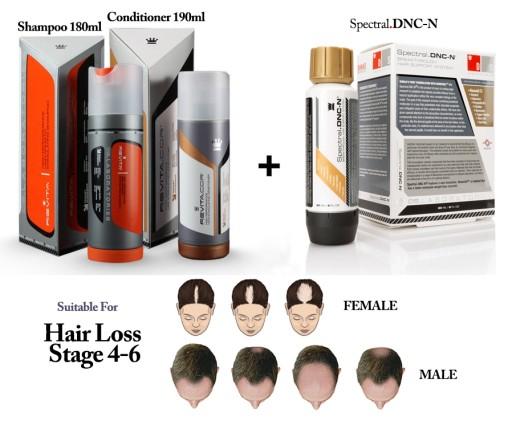 Spectral DNC-N / NANOXIDIL / nanosomy na łysienie